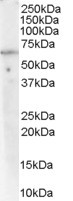 Western blot - Anti-PPP2R1A antibody (ab31316)