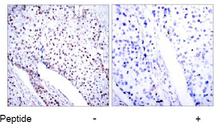 Immunohistochemistry (Paraffin-embedded sections) - STAT3 antibody (ab31370)
