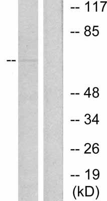 Western blot - Anti-Estrogen Receptor alpha (phospho S118) antibody (ab31477)