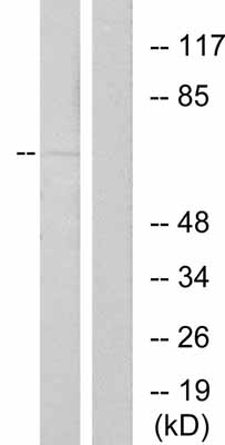 Western blot - Anti-Estrogen Receptor alpha (phospho S167) antibody (ab31478)