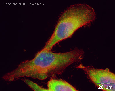 Immunocytochemistry/ Immunofluorescence - Anti-Gemin 4 antibody (ab31581)