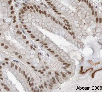 Immunohistochemistry (Formalin/PFA-fixed paraffin-embedded sections) - Anti-CDC5L antibody (ab31779)