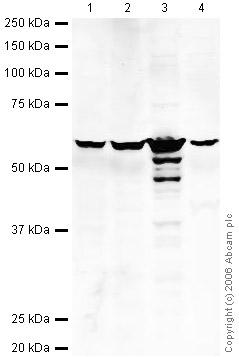 Western blot - Anti-PDI antibody - ER Marker (ab31811)