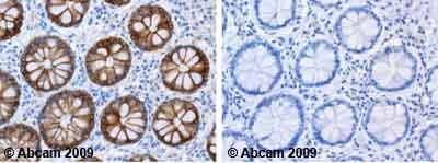 Immunohistochemistry (Formalin/PFA-fixed paraffin-embedded sections) - Anti-Cytokeratin 18 antibody [LDK18] (ab31844)
