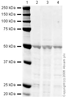 Western blot - Anti-beta Arrestin 1 antibody (ab31848)
