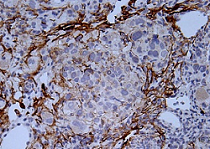 Immunohistochemistry (Formalin/PFA-fixed paraffin-embedded sections) - Anti-active Caspase-3 antibody [E83-77] (ab32042)