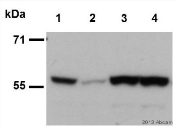 Western blot - Anti-Cdc25C (phospho S216) antibody [E190] (ab32051)