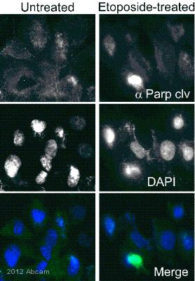 Anti Cleaved Parp Antibody E51 Ab32064 Ko Validated