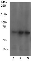 Western blot - Anti-Chk2 (phospho T68) antibody [Y171] (ab32148)