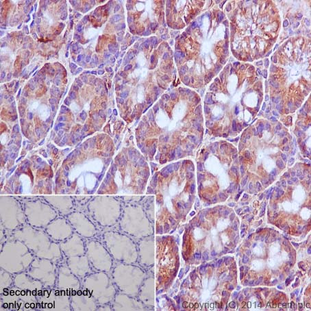 Immunohistochemistry (Formalin/PFA-fixed paraffin-embedded sections) - Anti-APAF1 antibody [E38] (ab32372)