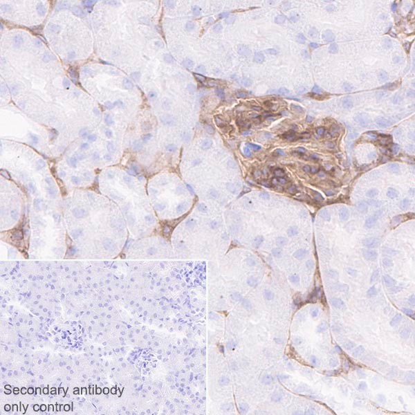 Immunohistochemistry (Formalin/PFA-fixed paraffin-embedded sections) - Anti-PDGF Receptor beta antibody [Y92] (ab32570)