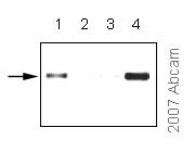 ChIP - Anti-CoREST antibody (ab32631)