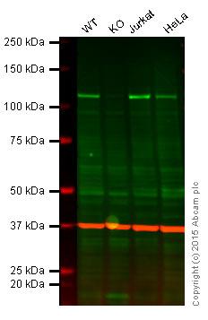 Western blot - Anti-NFkB p100 / p52 antibody [0.T.173] (ab32859)