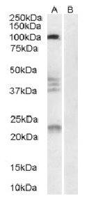 Western blot - Anti-Nogo Receptor antibody (ab32890)