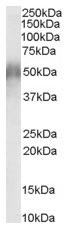 Western blot - Anti-CD2BP2 antibody (ab32899)