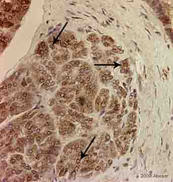 Immunohistochemistry (Formalin/PFA-fixed paraffin-embedded sections) - Anti-RBPJK antibody (ab33065)