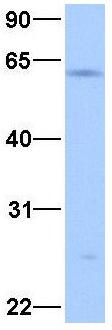 Western blot - Anti-TCF12 antibody (ab33581)