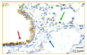 Immunohistochemistry (Formalin/PFA-fixed paraffin-embedded sections) - Anti-TrkB antibody (ab33655)