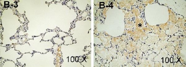 Immunohistochemistry - Anti-Fibrinogen antibody (ab34269)