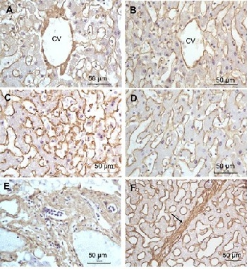 Immunohistochemistry (Formalin/PFA-fixed paraffin-embedded sections) - Anti-Collagen I antibody (ab34710)
