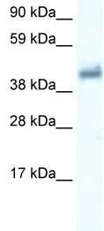 Western blot - Anti-GABA Receptor Epsilon antibody (ab35971)