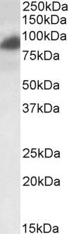 Western blot - Anti-RAB11FIP1 antibody (ab36124)