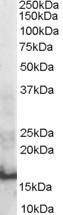 Western blot - Anti-SH2D1A/SAP antibody (ab36141)