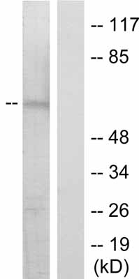 Western blot - Anti-Chk2 (phospho S516) antibody (ab36724)
