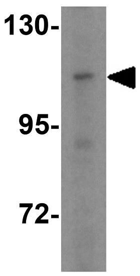 Western blot - Anti-CARD10 antibody (ab36839)