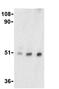 Western blot - Anti-TTC5 antibody (ab36855)