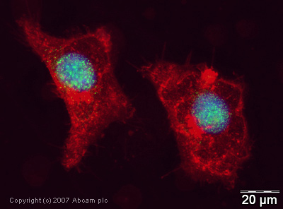 Immunocytochemistry/ Immunofluorescence - Anti-UBCH6/UBE2E1 antibody (ab36980)