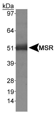 Western blot - Anti-Macrophage Scavenger Receptor I antibody (ab36998)