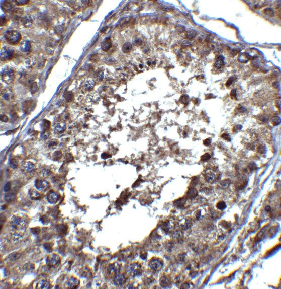 Immunohistochemistry (Formalin/PFA-fixed paraffin-embedded sections) - Anti-PIST antibody (ab37036)