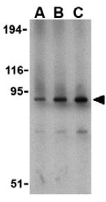 Western blot - Anti-TLR1 antibody (ab37068)