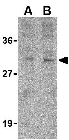 Western blot - Anti-Tollip antibody (ab37155)