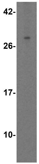 Western blot - Anti-TL1A antibody (ab37169)