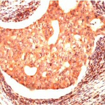Immunohistochemistry (Formalin/PFA-fixed paraffin-embedded sections) - Anti-JAB1 antibody, prediluted (ab37290)