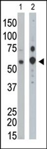 Western blot - Anti-PPM1G antibody (ab37503)