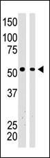 Western blot - Anti-BAIAP2 antibody (ab37542)