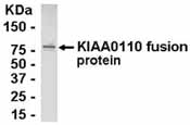 Western blot - Anti-MAD2L1 binding protein antibody (ab37584)