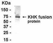 Western blot - Anti-ketohexokinase antibody (ab37586)