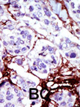 Immunohistochemistry (Formalin/PFA-fixed paraffin-embedded sections) - Anti-UCK antibody (ab37600)