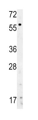 Western blot - Anti-Natriuretic Peptide Receptor C antibody (ab37617)
