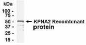 Western blot - Anti-KPNA2 antibody (ab37628)