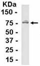 Western blot - Anti-ATP6V1E1 antibody (ab37681)