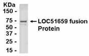 Western blot - Anti-PSF2 antibody (ab37683)