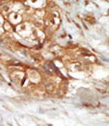 Immunohistochemistry (Formalin/PFA-fixed paraffin-embedded sections) - Anti-NFkB Inducing Kinase NIK antibody (ab37712)