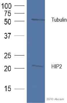 Western blot - Anti-HIP2 antibody (ab37917)
