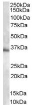 Western blot - Anti-MPG antibody (ab37983)