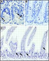 Immunohistochemistry (Formalin/PFA-fixed paraffin-embedded sections) - Anti-DCAMKL1 antibody (ab37994)